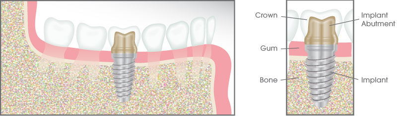 Dental Implant Illustration - Capstone Dentistry TX